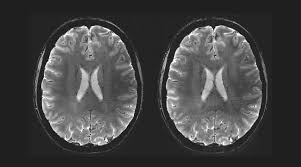 skope speed and accuracy for mri