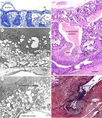 the role of invasive trophoblast in implantation and placentation