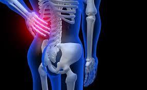 sedere rotto frattura coccige le cause e i possibili rimedi