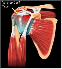 Rotator Cuff Injury From Bench Press Front Shoulder Pain With Bench Press Incline Press Etc