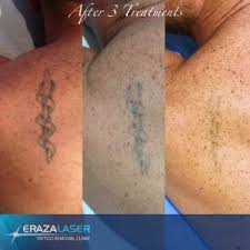 tattoo removal shoulder tattoo removal images before and after photos erazalaser clinics