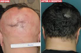 new hair growth discoveries drug stimulates regrowth of a full head of hair in just 4 months