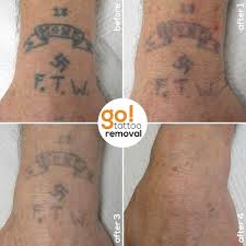14 best tattoos removed images on pinterest tattoo removal will