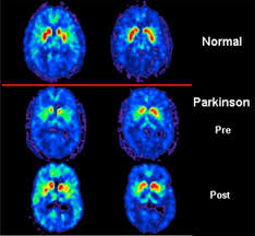 red light therapy for parkinson s parkinson s foundation better lives together