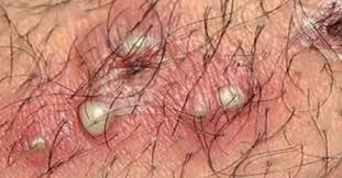 ver large pubic hair bump on pubic area female male picture pimple small lump in