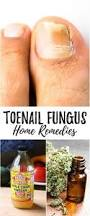 best 25 what causes toenail fungus ideas on pinterest toenail