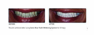 amazon com go smile sonic blue teeth whitening system 1 3 pound
