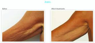 Pumpkin Enzyme Peel Before And After by Services Burgundy Skin U0026 Beauty