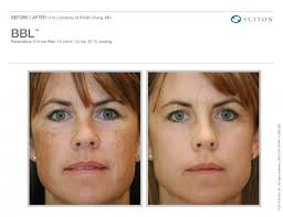 Light Therapy For Skin Forest Healthcare Associates Broadband Light Therapy For Younger