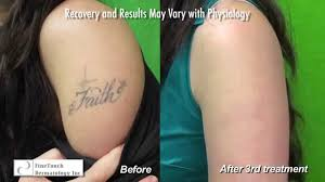 los angeles laser tattoo removal using the spectra laser before