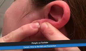 How To Remove Blind Pimple Pimple On Earlobe Causes How To Get Rid And Prevention