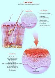 dermite du si e dermatite de contact allergique ou irritative à la visage
