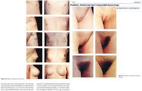 pubity nude|Bildagentur | mauritius images | Girls, in the nude, 12 ...