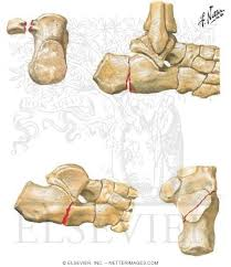 Anatomy Of The Calcaneus Welcome To Netter Images