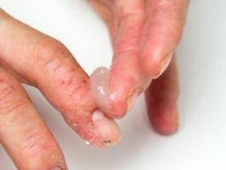 psoriasis treatment how is severe psoriasis treated