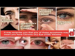 what causes eyes to be sensitive to light red irritated eyes sensitive to light americanwarmoms org