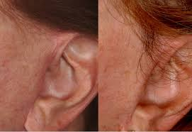 hairstyles that cover face lift scars special cases bauman medical group