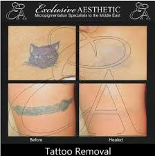 tattoo removals available by exclusive aesthetic we use rejuvi