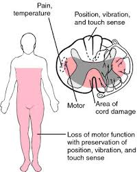 Rug Medical Term 622 Best Nursing Images On Pinterest Spinal Cord Injury