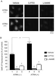 upregulation of nitric oxide production in vascular endothelial