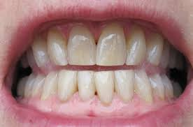 does activated charcoal whiten your teeth kris insight