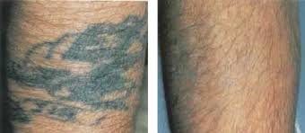 laser tattoo removal cincinnati q switched alexandrite and yag