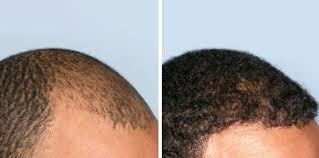 hairline restoration for black men men s hair transplant before and after gallery hair sciences center