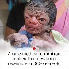 Old Baby Meme - a rare medical condition makes this newborn resemble an 80 year old