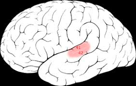 Cortical Blindness May Result From The Destruction Of Cortical Deafness Wikipedia