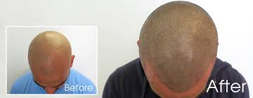 pics of scalp micropigmentation on people with long hair temporary versus permanent scalp micropigmentation which is best