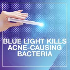 at home light therapy for acne at home light therapy for acne inspirational light therapy acne spot