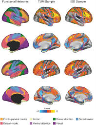 frontiers resting state connectivity of the left frontal cortex