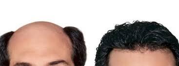 bonding hair rs 9999 best hair weaving in delhi hair bonding replacement in delhi