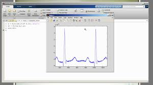 dsp using an fir filter to remove 50 60hz from an ecg matlab