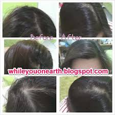Serum Rudy rudy hadisuwarno hair growth serum malaysia trendy hairstyles in