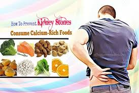 top 12 tips how to prevent kidney stones from forming naturally