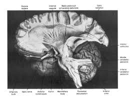 Part Of The Brain Stem That Is Involved In Arousal Brainmind Com