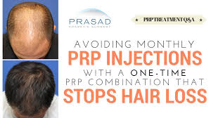 prp hair loss treatment is done monthly but a prp combination