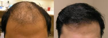 plastic hair san francisco hair transplant and hair restoration visage san