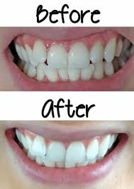 luster pro light teeth whitening system reviews affordable effective teeth whitening smile bright review before