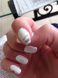 day 2 acrylic peeling off and falling off in chunks natural nail