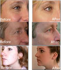 blu light therapy for acne blue light therapy for acne