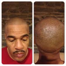 pics of scalp micropigmentation on people with long hair scalp micropigmentation