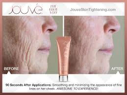 jouve instant tightening u0026 restoring serum