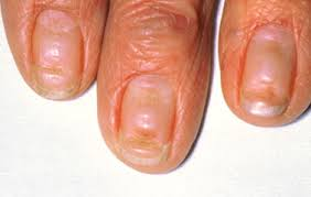 fungal nail infection nhs choices