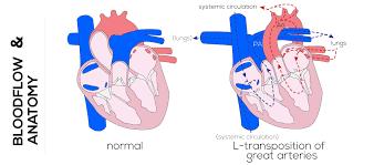 Heart Anatomy Arteries Congenital Defects Tutorial Congenital Heart Defects Atlas Of