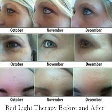 Light Therapy For Skin 16 Red Light Therapy For Skin The Glam Squad Getting