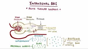 acute kidney injury aki genitourinary disorders merck