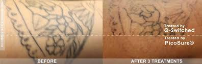 best laser tattoo removal with picosure philadelphia u0026 main line