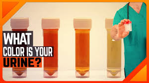 what color is orange what your urine color says about your health this is what your